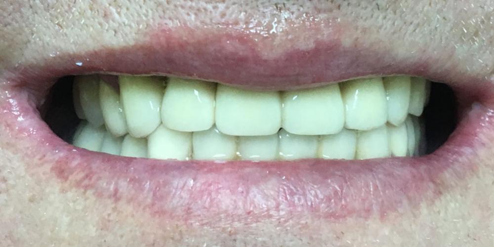 Комплексное восстановление жевательной функции при частичном отстутствии зубов