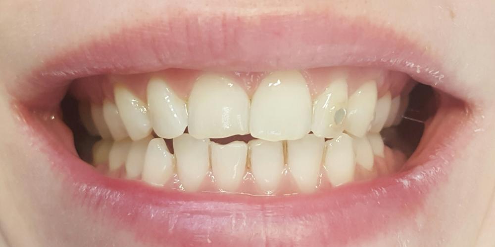 Цельнокерамические виниры E-max на передние зубы верхней и нижней челюсти, домашнее отбеливание