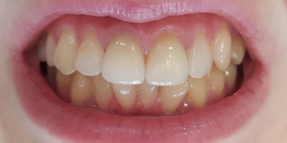Цельнокерамические винир и коронка E-max на 11, 21 зуб