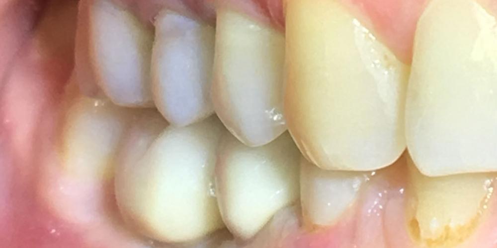 Восстановить жевательную функцию вследствие утраты двух зубов