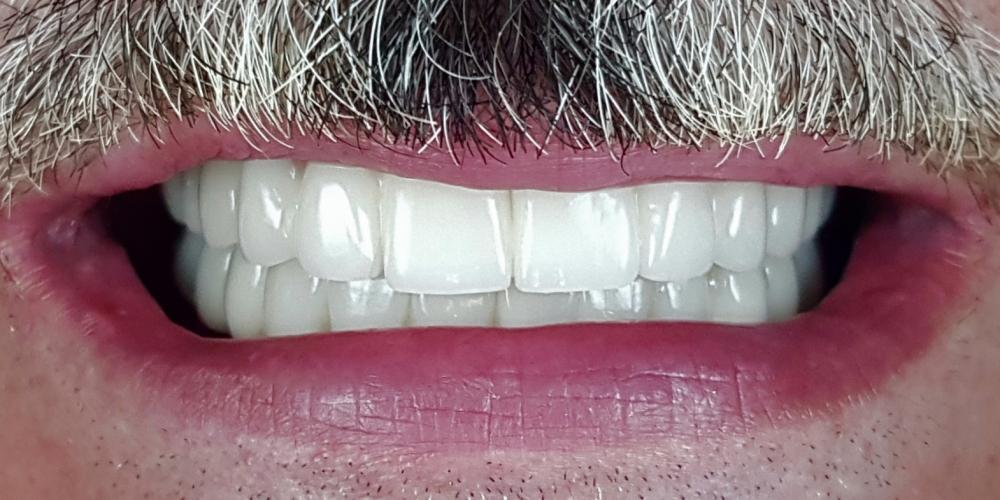 Имплантация зубов верхней и нижней челюсти, полностью