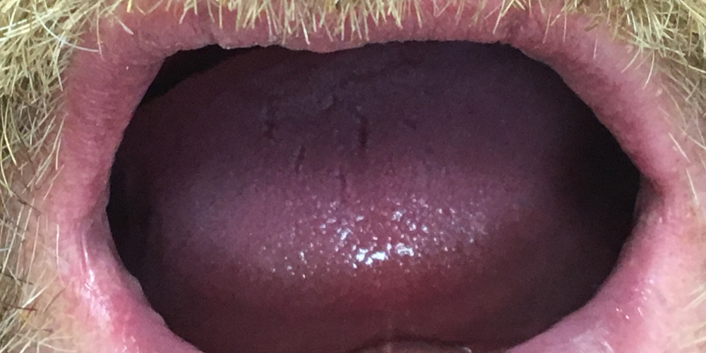 Жалобы на полное отсутствие зубов на верхней и нижней челюсти