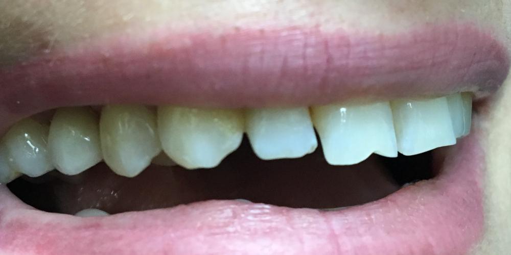 Жалоба на разрушенный корень 15 зуба