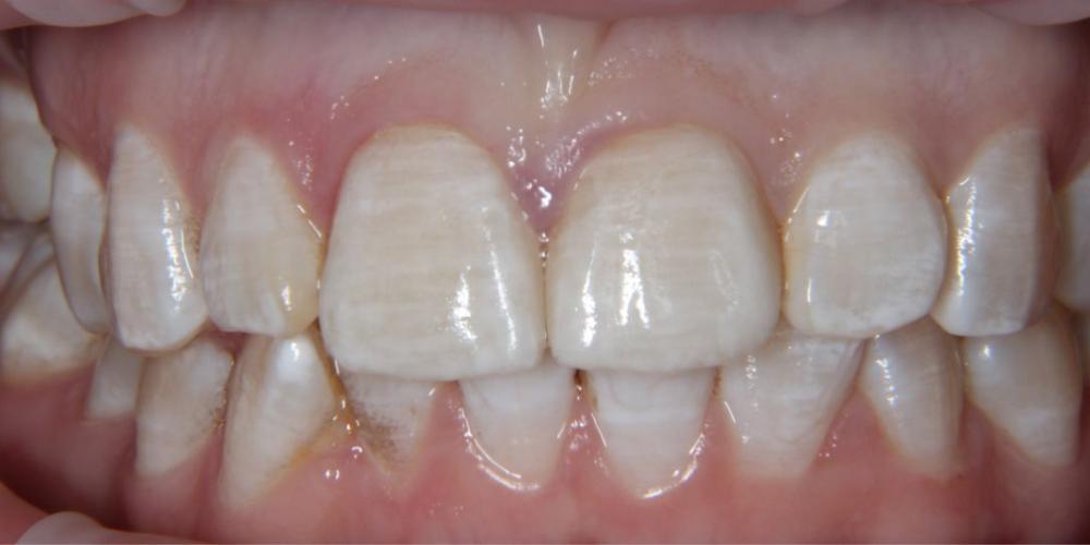 Цельнокерамические виниры на центральные резцы верхней челюсти