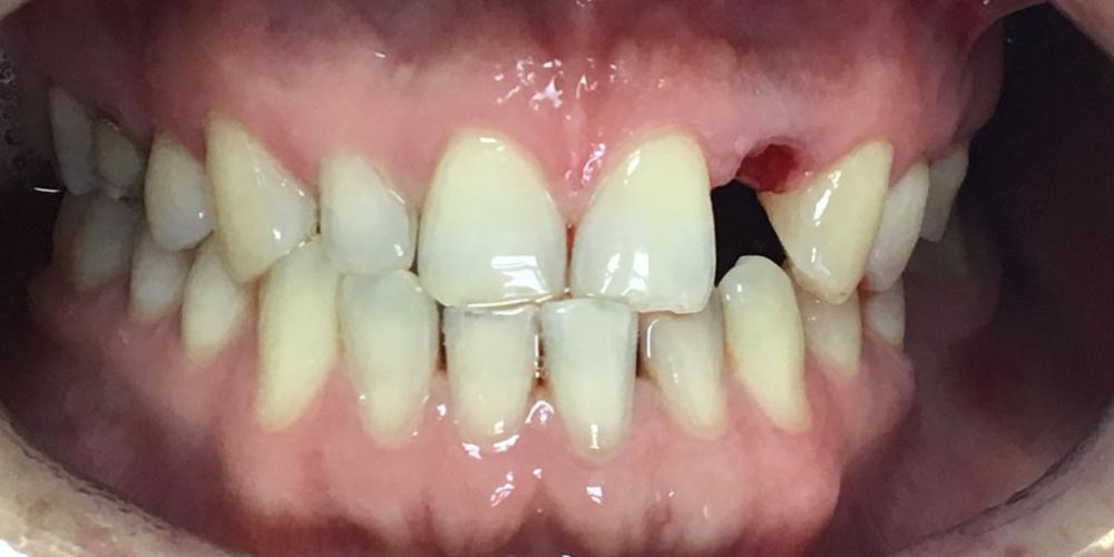 Одномоментная имплантация Osstem переднего зуба