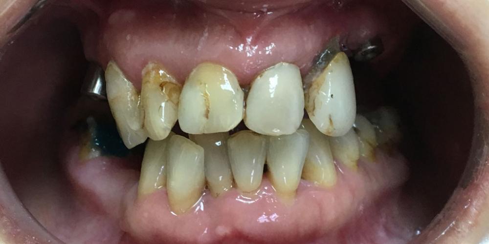 Комплексное восстановление зубов верхней и нижней челюсти