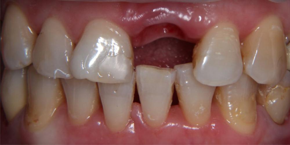 Одномоментная имплантация и протезирование металлокерамической коронкой