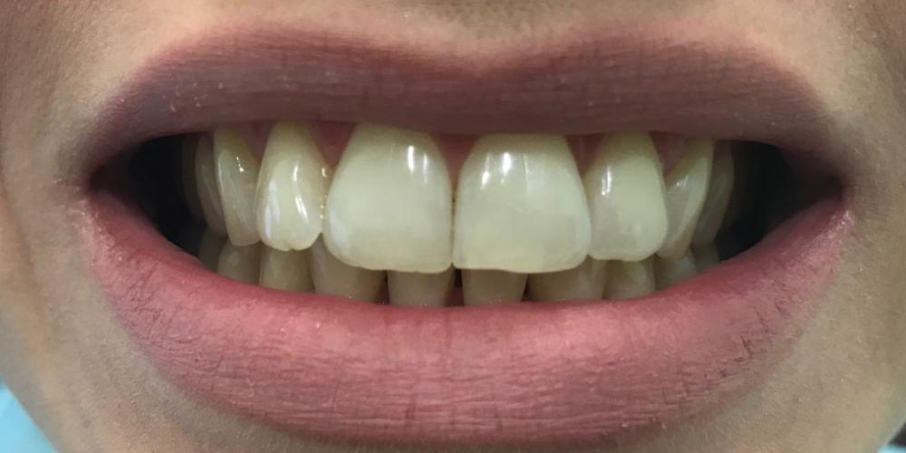 Чистка и отбеливание зубов Air-Flow & ZOOM 4
