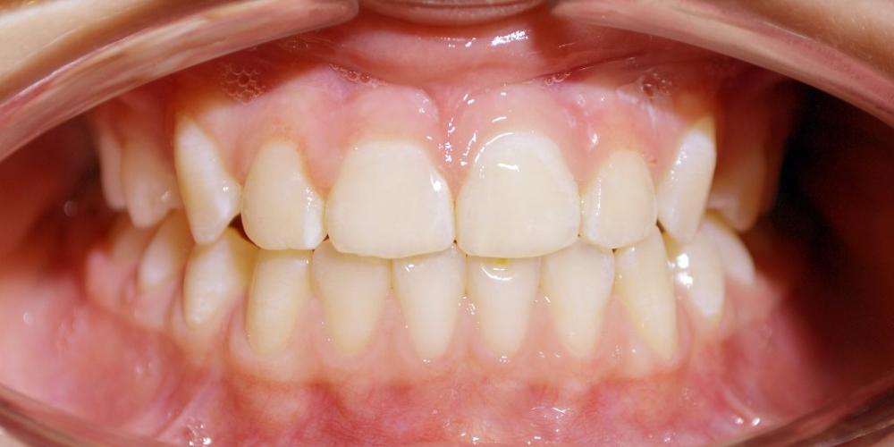 Избыточный рост нижней челюсти и недостаточный рост верхней челюсти