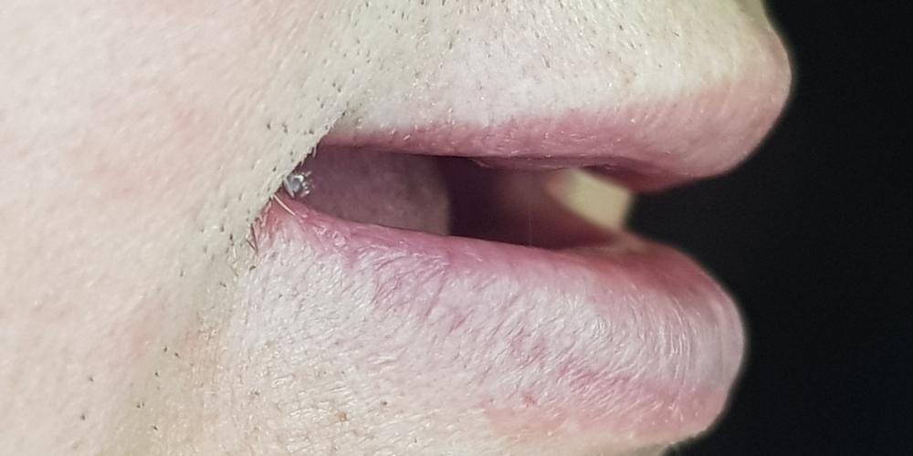 Дентальная имплантация на верхней и нижней челюсти с удалением всех зубов по показаниям