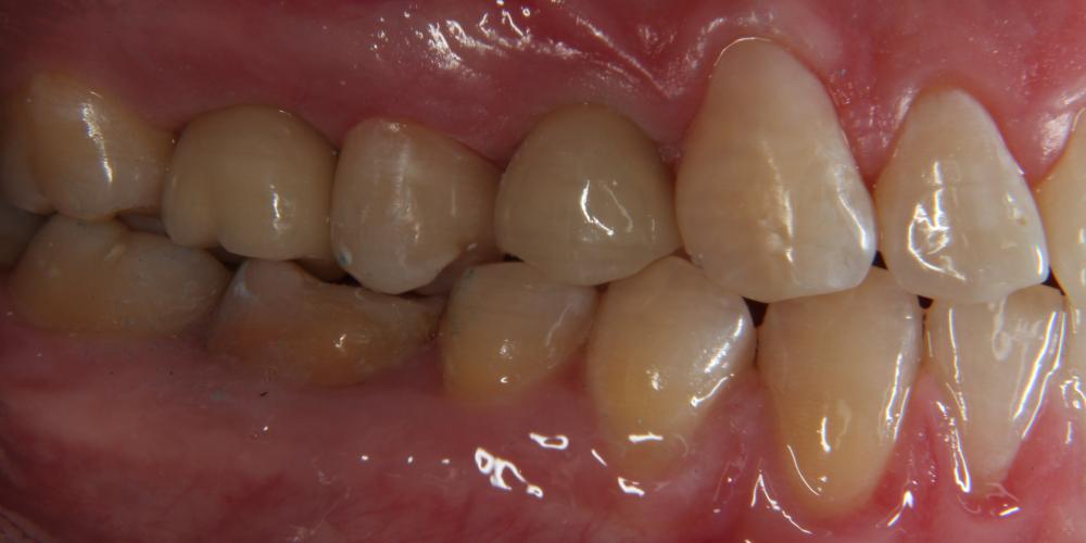 Дентальная имплантация 3х зубов на верхней челюсти