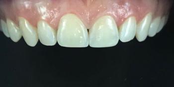 Результат реставрации и отбеливания зубов ZOOM 4 фото после лечения