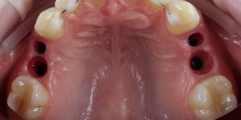 Дентальная имплантация 4х зубов, цельнокерамические коронки на имплантаты фото до лечения