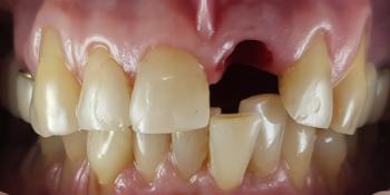 Дентальная имплантация 1 зуба на верхней челюсти, цельнокерамическая коронка с опорой на имплантат фото до лечения
