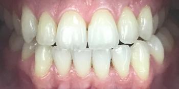 Домашнее отбеливание, фото до и после фото после лечения