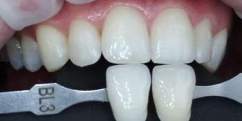 Клиническое отбеливание зубов системой ZOOM4 фото после лечения