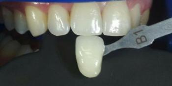 Клиническое отбеливание зубов системой ZOOM4 фото до лечения