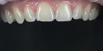 Результат реставрации и отбеливания зубов ZOOM 4 фото до лечения
