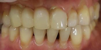 Дентальная имплантация с удалением зубов в переднем отделе на верхней челюсти фото до лечения