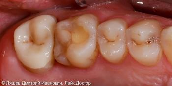 Восстановлении зуба керамической вкладкой по технологии CAD/CAM CEREC фото после лечения