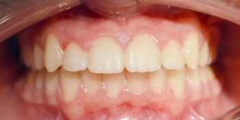 Дистальный прикус, умеренная скученность резцов верхней и нижней челюсти фото после лечения