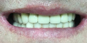 Комплексное восстановление жевательной функции при частичном отстутствии зубов фото после лечения
