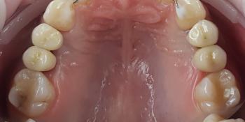 Дентальная имплантация 4х зубов, цельнокерамические коронки на имплантаты фото после лечения