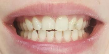Цельнокерамические виниры E-max на передние зубы верхней и нижней челюсти, домашнее отбеливание фото до лечения