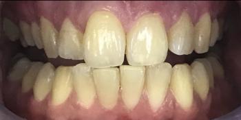 Профессиональная гигиена полости рта и офисное отбеливание ZOOM 4 фото до лечения