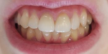 Цельнокерамические винир и коронка E-max на 11, 21 зуб фото после лечения