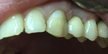 Имплантация с одномоментным удалением корня зуба фото после лечения