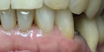 Восстановление отсутствующего зуба имплантатом фото до лечения