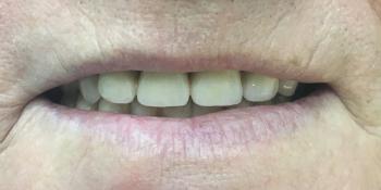 Протезирование с применением имплантатов и сохранением своих зубов фото после лечения