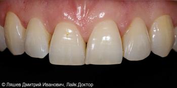 Профгигиена и отбеливание зубов ZOOM 4 фото до лечения