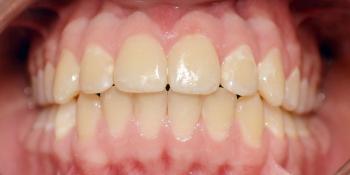 Нейтральное соотношение зубных рядов и апикальных базисов фото после лечения