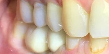 Восстановить жевательную функцию вследствие утраты двух зубов фото после лечения