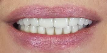 Дентальная имплантация на верхней и нижней челюсти с удалением всех зубов фото после лечения