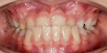 Избыточный рост нижней челюсти и недостаточный рост верхней челюсти фото до лечения