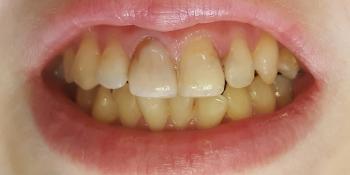 Цельнокерамические винир и коронка E-max на 11, 21 зуб фото до лечения