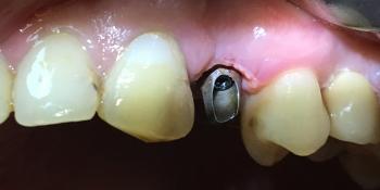 Имплантация с одномоментным удалением корня зуба фото до лечения