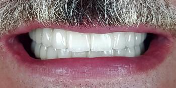 Имплантация зубов верхней и нижней челюсти, полностью фото после лечения
