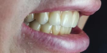 Дентальная имплантация на верхней и нижней челюсти с удалением всех зубов по показаниям фото после лечения