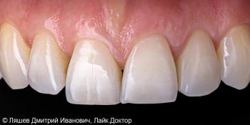 Профгигиена и отбеливание зубов ZOOM 4 фото после лечения