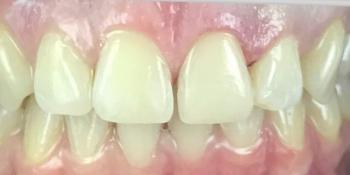 Реставрация зуба 21 и домашнее отбеливание фото после лечения