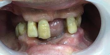Протезирование с применением имплантатов и сохранением своих зубов фото до лечения