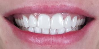 Цельнокерамические виниры E-max на передние зубы верхней и нижней челюсти, домашнее отбеливание фото после лечения