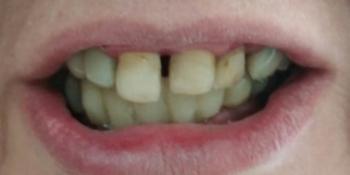 Дентальная имплантация на верхней и нижней челюсти с удалением всех зубов фото до лечения