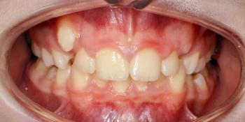 Дистальный прикус, умеренная скученность резцов верхней и нижней челюсти фото до лечения