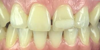 Реставрация зуба 21 и домашнее отбеливание фото до лечения