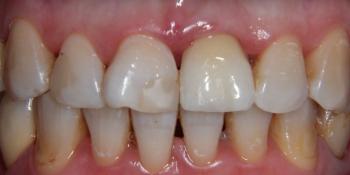 Одномоментная имплантация и протезирование металлокерамической коронкой фото после лечения